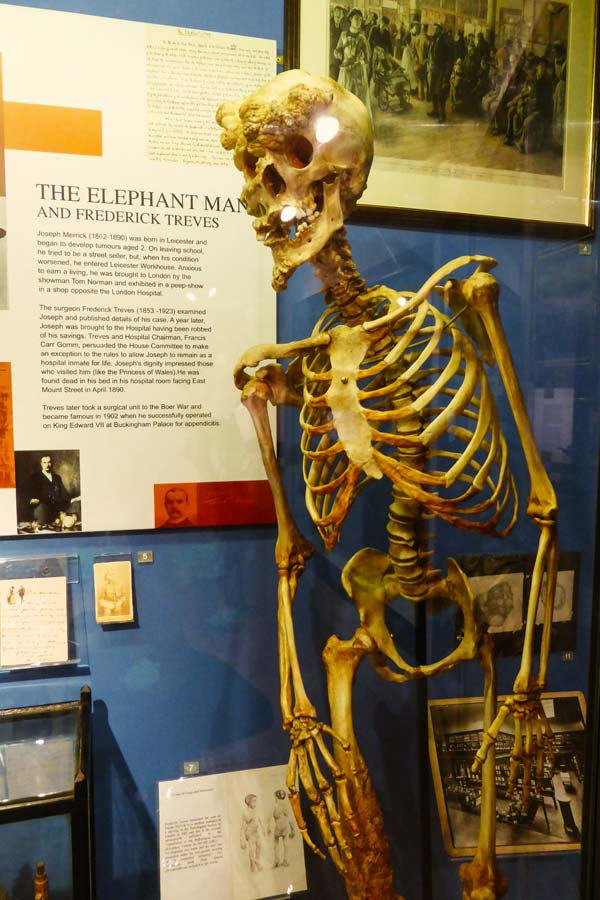 Replica of the skeleton of Joseph Merrick on display in the Royal London Hospital museum in Whitechapel, London